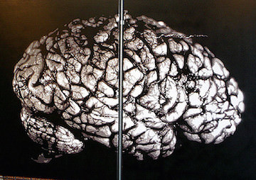 Mad Science: First Human Brain Grown in Lab, Researchers Claim
